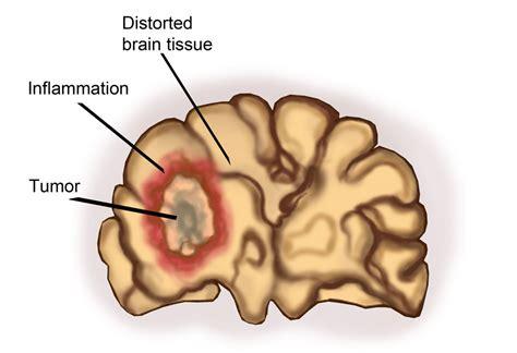 Brain tumour, benign