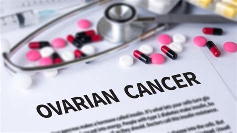Breakthrough  in ovarian cancer treatment