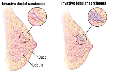 Breast Cancer Guide: Causes, Symptoms and Treatment Options