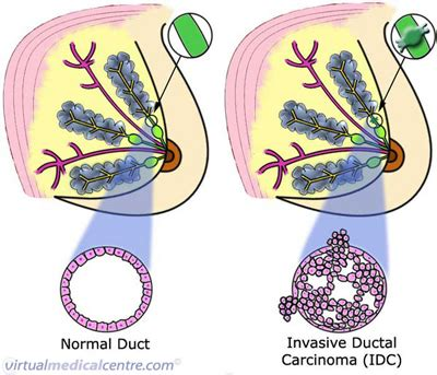 Breast cancer  invasive ductal carcinoma  information | myVMC