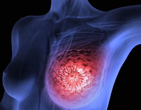Breast cancer   recognising symptoms could stop disease ...