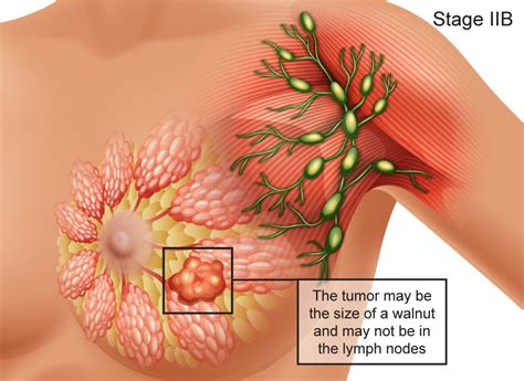 Breast Cancer, Signs, Symptoms, Stages, Treatment, About ...