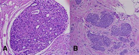 Breast Carcinoma in Situ   Lobular   Ductal   LCIS   DCIS ...