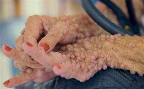 Bultos por todo el cuerpo: La rarísima enfermedad que ...