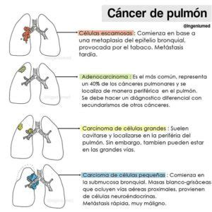 ca pulmon   Ingeniumed