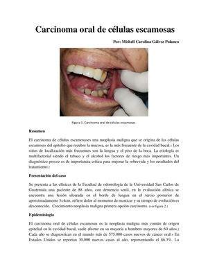 Calaméo   Carcinoma Oral De Celulas Escamosas Docx