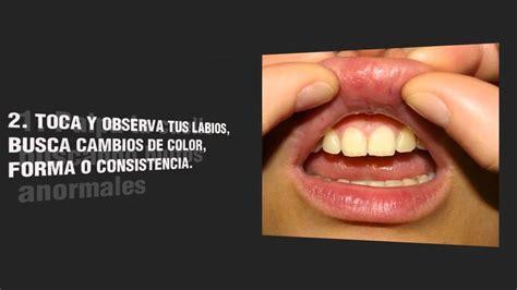 Campaña Saca la Lengua  Previene el Cancer Oral  2013 ...