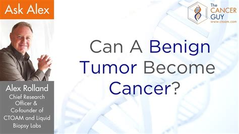 Can A Benign Tumor Become Cancer  Malignant ?   YouTube