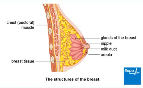 Can benign breast tumors become cancerous   Breast cancer ...