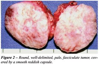 Can there be any benign tumors in a bladder? Is there any ...