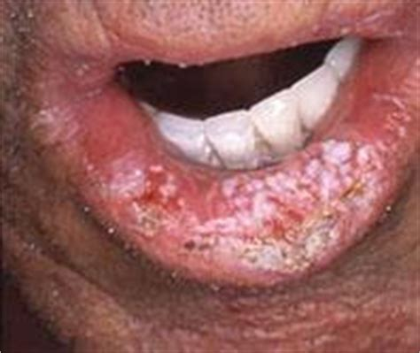 Câncer bucal ~ Araújo e ginger   Odontologia Estética