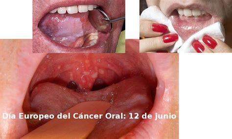 Cáncer bucal   El tabaco y el alcohol son el mayor riesgo ...