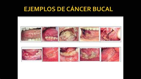 Cancer bucal   YouTube