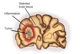 Cancer Center at Gaithersburg » Brain Tumors – Metastases