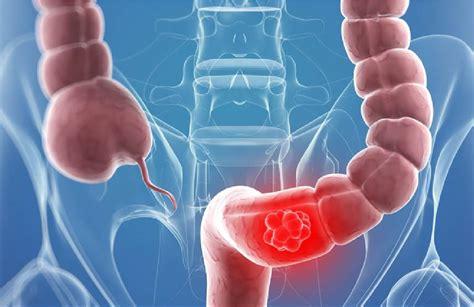 Cáncer colo rectal – Clínica Pueyrredon