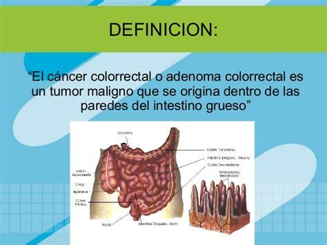Cancer colorrectal para dummies