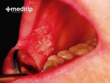 Cáncer de boca: causas, diagnóstico y tratamiento   Meditip