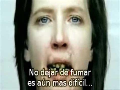 Cancer de Boca por Tabaco.wmv   YouTube
