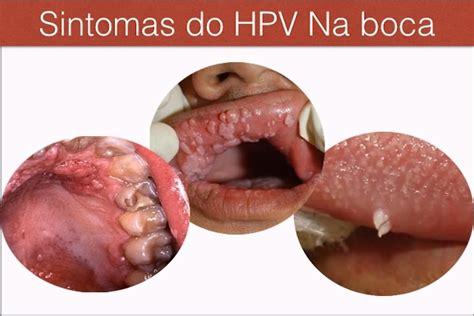 Cancer De Boca Sintomas Iniciales   SEONegativo.com