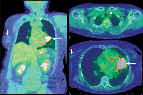 Cancer de colon   Cancer de colon metacronico definicion