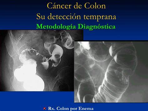 Cancer de colon. deteccion precoz