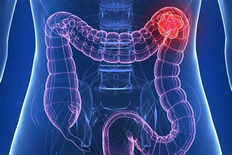 Cáncer de colon: el diagnostico precoz posibilita un 90% ...