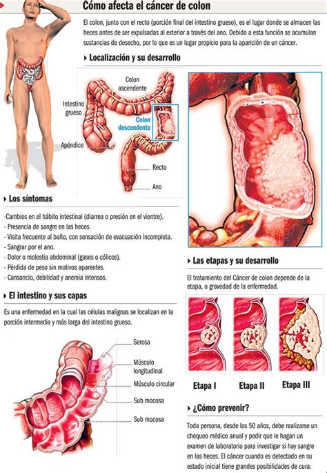 Cancer de colon #infografia | Infographics | Infografia ...