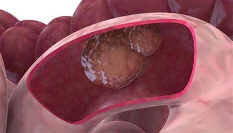 Cáncer de colon: lo que debes saber   Web Salud
