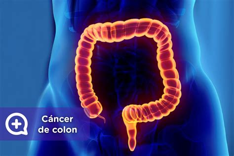 Cáncer de colon: Los síntomas de alarma   mediQuo
