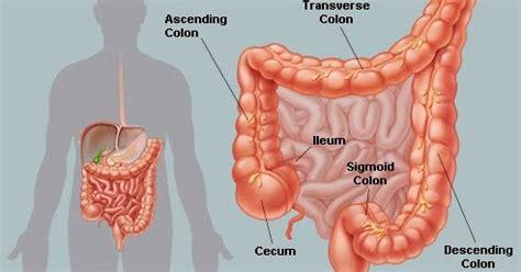 Cáncer de Colon | Medicusmeo