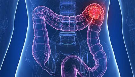 Cáncer de colon: Qué es, factores de riesgo, etapas y ...
