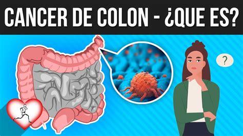 CÁNCER DE COLON: Que es, síntomas, causas, como evitarlo ...