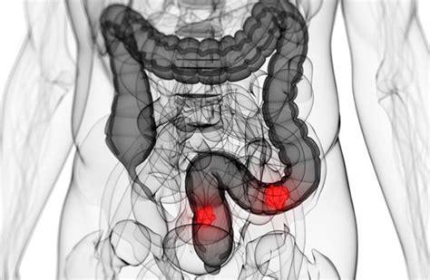Cáncer de colon: ¿Qué es?   Síntomas, causas y tratamiento