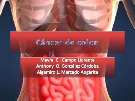 Cancer de colon QX