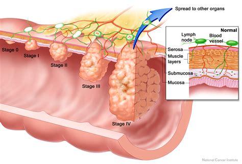 Câncer de cólon – princípios da prevenção e do tratamento ...