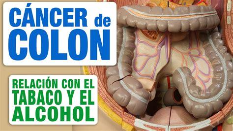 Cáncer de Colon, Tabaco y Alcohol   YouTube