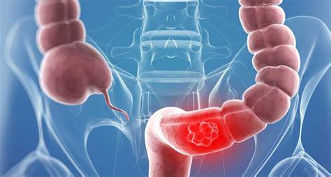 Cáncer de colon y recomendaciones nutricionales