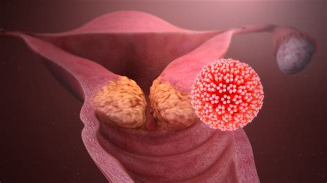 Cáncer de cuello uterino  cervical : causas y síntomas