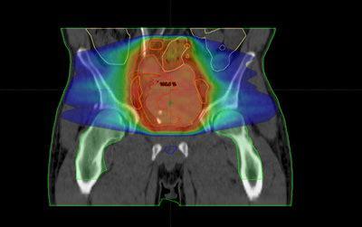 Cáncer de Cuello Uterino: Perspectivas clínicas de la ...