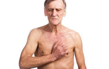 Cáncer de esófago Causas, síntomas y tratamiento