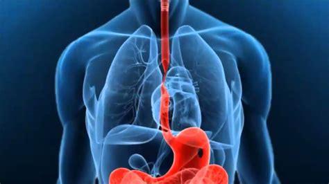 Cáncer de esófago: Qué es, causas, tipos, tratamiento y más