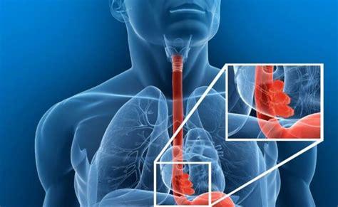 Cáncer de esófago: síntomas, diagnóstico y tratamiento ...