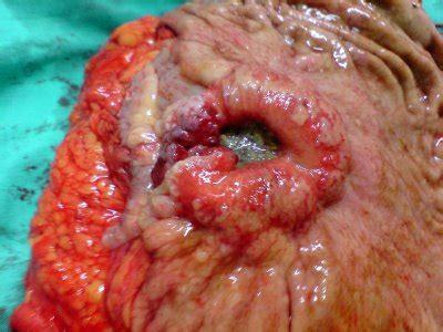 cancer de estomago: Cancer de estomago