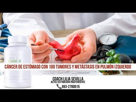 Cáncer de Estomago con 100 Tumores y Metástasis en el ...