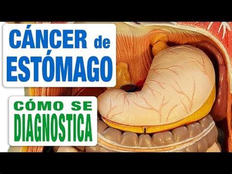 Cáncer de Estómago   Diagnóstico   YouTube