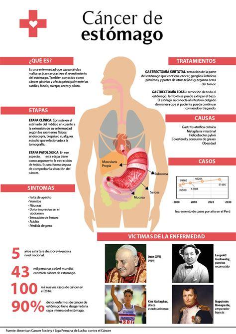 Cáncer de estómago: muerte lenta     Punto Seguido   UPC