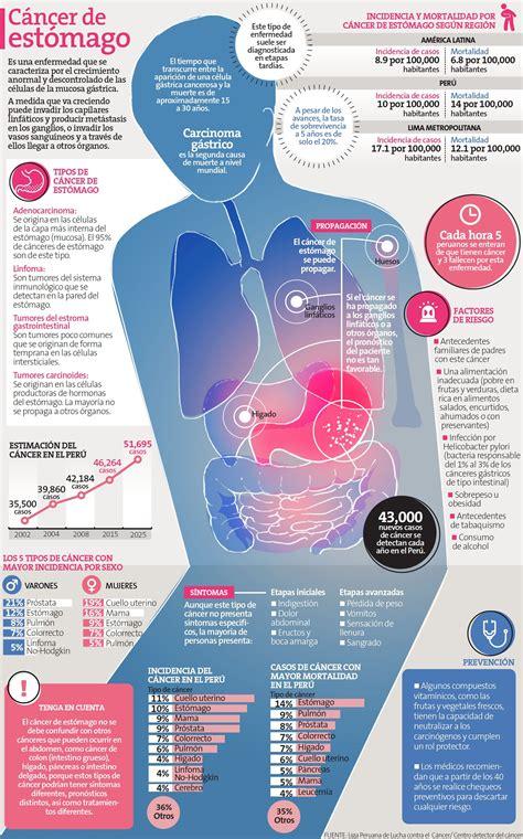 Cáncer de estómago   Salud & Bienestar   Pinterest ...