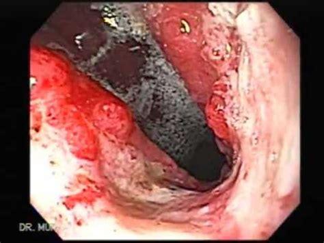 Cancer de Estómago   YouTube