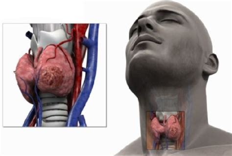 Câncer de Faringe | Câncer de Garganta   SM