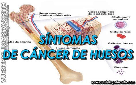 CÁNCER DE HUESO